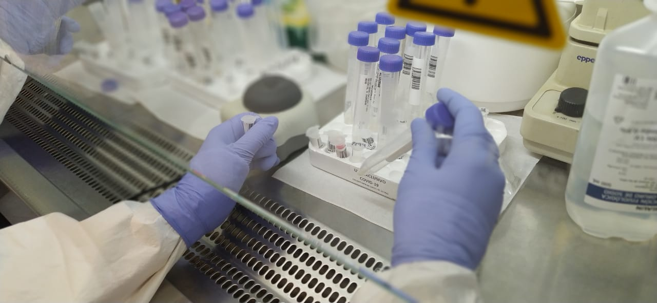 """Coronavirus: por datos sin """"calidad suficiente"""", eliminan a la Argentina de un centro de estadísticas globales"""