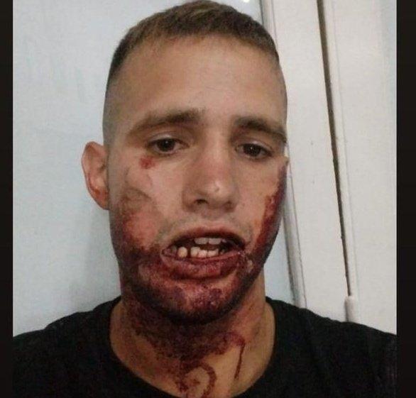 """""""Eran seis contra mí"""", dijo el joven que sufrió una fractura al ser echado de un boliche"""