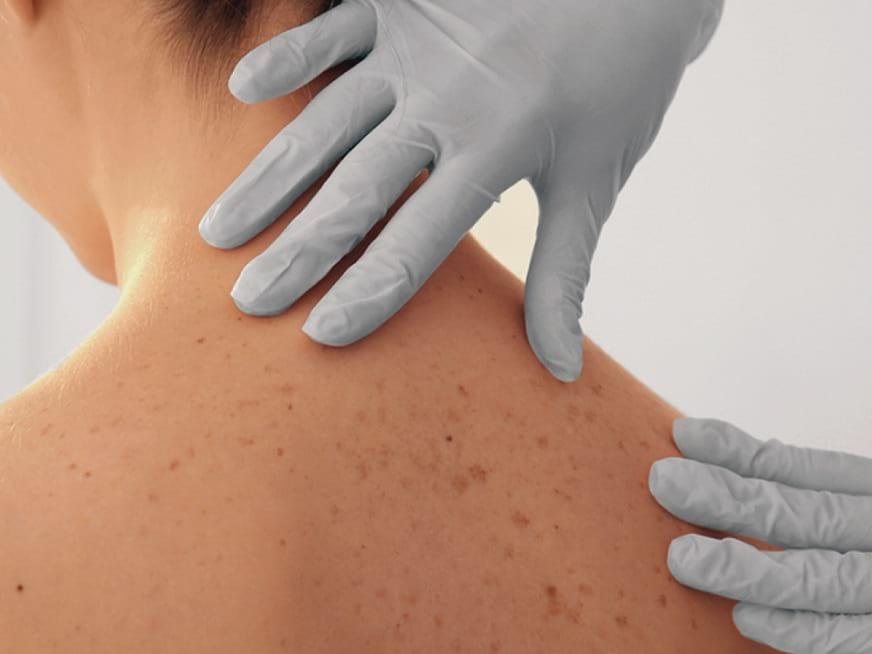 Diagnóstico a tiempo y controles periódicos, herramientas clave para vencer al cáncer de piel